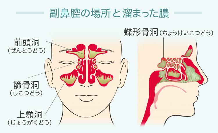 蓄膿症 コロナ